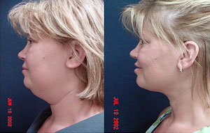 Body Contouring, Breast Enhancement, Face Lifts, Weight Loss and  cosmetic services of Dr. Ramos, Chesterfield, Missouri